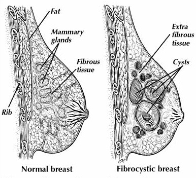 diet can play a big part in dealing with fibrocystic breast disease, Skeleton
