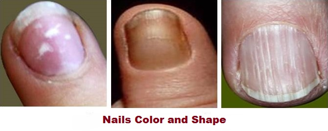 Nails Color and Shape