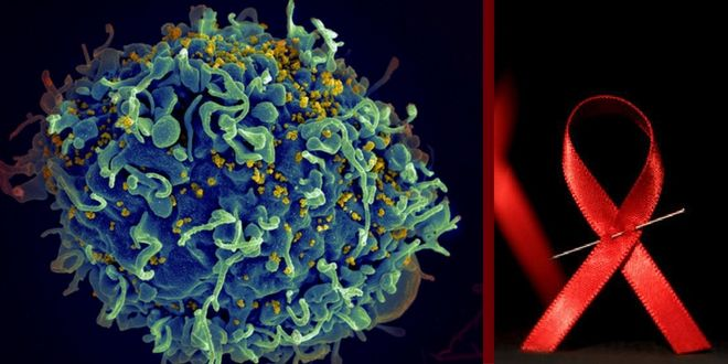 Bingo: N6 antibody may hold key to stopping HIV