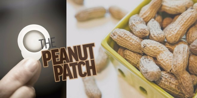 Peanuts patch to reduce severe allergy symptoms