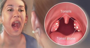 Casting out tonsil stones
