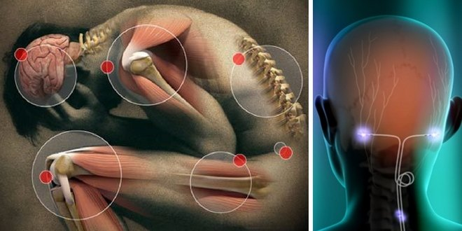 Bioelectric implants used banish lupus pain