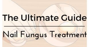 ultimate guide nail fungus treatment