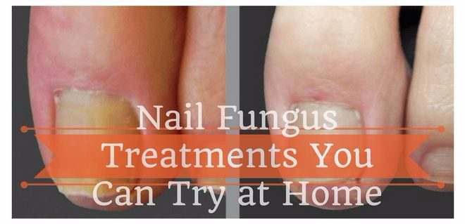 nail fungus treatments you try at home
