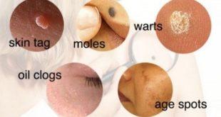 skin condition