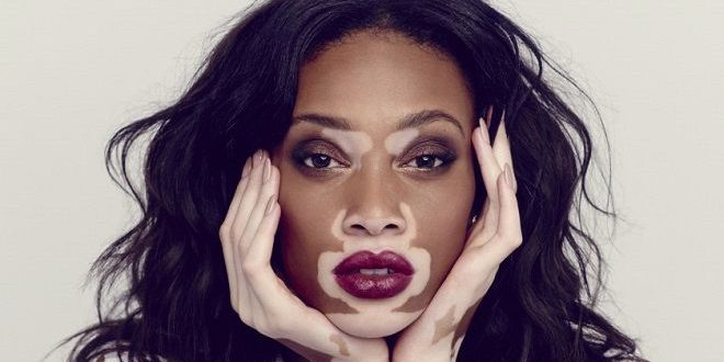 winnie harlow vitiligo